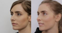 top Rhinoplasty surgeon in Lahore