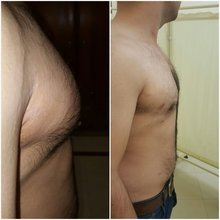 Liposuction in Lahore-laser liposuction