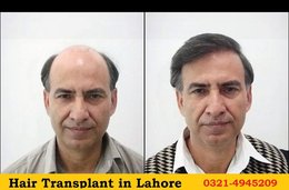 Hair transplant: the importance of finding and finding a good professional