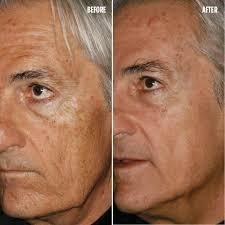 Don't want to look old! Check out this treatment